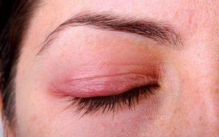 Альбуцид или сульфацил-натрия, глазные капли