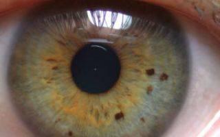 Белое пятно на глазу у человека