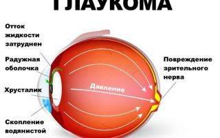 Как избавиться от покраснения в уголке глаза. почему болит в уголке глаза ближе к виску или носу почему болит уголок глаза