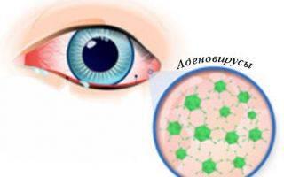 Симптомы и лечение вирусного конъюнктивита у ребенка