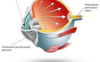 Хилабак (глазные капли): инструкция по применению, цена, отзывы, аналоги