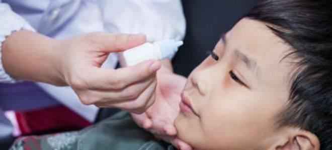 Почему у детей при конъюнктивите повышается температура