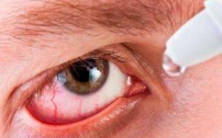 Причины болей в глазном яблоке, диагностика и лечение
