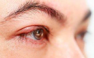 Сулят ли беду расплывчатые силуэты вблизи? тест на дальнозоркость определит проблемы со зрением