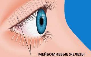 Как отличить халязион от ячменя: причины, лечение, профилактика