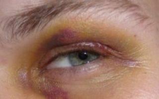 Что делать, если лопнул сосуд под глазом, и образовался синяк?