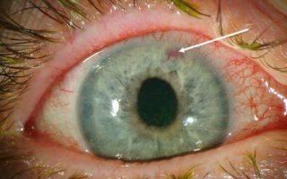 Антидепрессанты при глаукоме какие можно