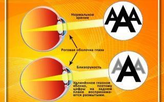 Зрение -2: профилактика и улучшение