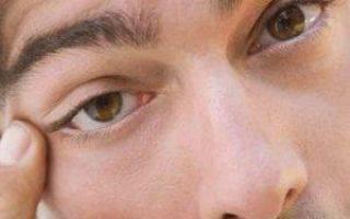 Блефароспазм причины симптомы лечение