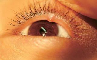 Как лечить внутренний ячмень на глазу