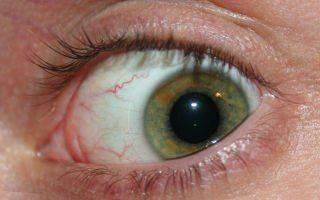 Почему дёргается глаз верхнее веко