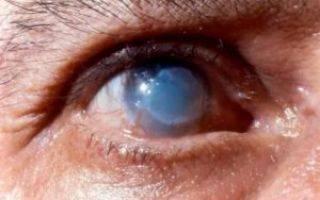 Спасите сварщику глаза