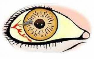 Что такое офтальмия