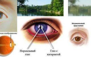 Глаза видят по разному после операции катаракты