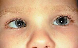 Расходящееся косоглазие у детей и взрослых: виды, причины, лечение