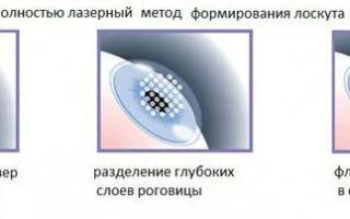 Риски лазерной операции