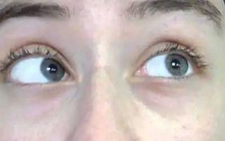 Что такое рефракция глаза и как ее лечить