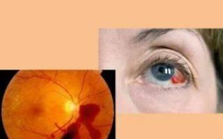 Периферическая дистрофия или след улитки на сетчатке глаза: какие риски несет заболевание?