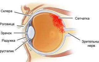 Кровоизлияние в глаз: капли для быстрого рассасывания, народные средства, как лечить