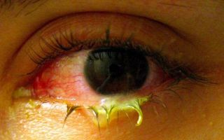 Виды гнойных конъюнктивитов у детей: как и чем лечить воспаление?