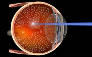 Как бесплатно сделать лазерную коррекцию зрения по полису омс?