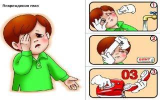 Что делать, если у ребенка слезятся глаза и каковы причины этого