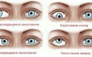 Глаза смотрят в разные стороны: причины и лечение болезни