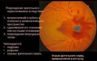 Как проявляется и лечится отек зрительного нерва?