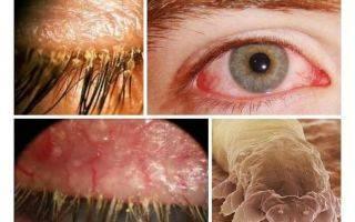 Что делать, если чешутся веки глаз