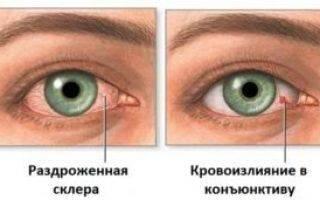 Что делать, если лопнул сосуд в глазу?