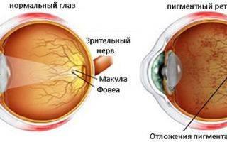 Доминантные друзы сетчатки глаза