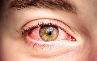Что делать, если краснеют глаза от линз