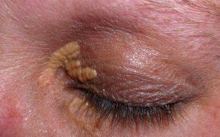 Белые круги под глазами причины болезни у женщины