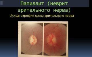 Что такое ретробульбарный неврит зрительного нерва?
