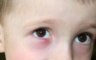 Воспалился глаз у ребенка, что делать при конъюнктивите, блефарите, увеите, ячмене