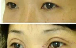 Эпикантопластика: что это такое, фото до и после операции по удалению эпикантуса