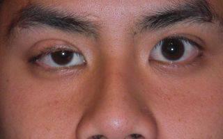 Инструкция по применению капель гаразон в глаза и уши