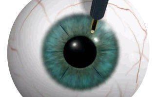Кератотомия: все про операцию