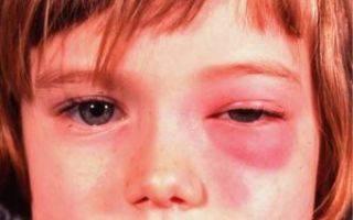 Флегмона века: лечение, первые симптомы, диагностика и фото примеры