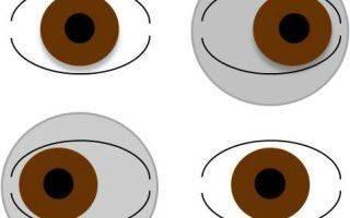 Гетерофория: скрытое косоглазие