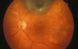 Как лечить макулярный отек сетчатки глаза