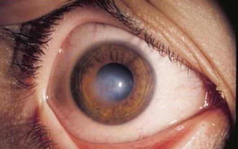 Повреждение роговицы глаза - причины, симптомы и лечение