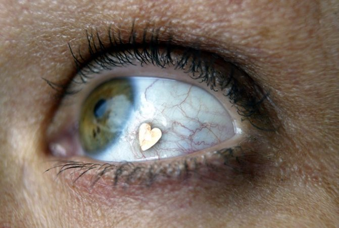 Причины желтых белков глаз (иктеричности склер)
