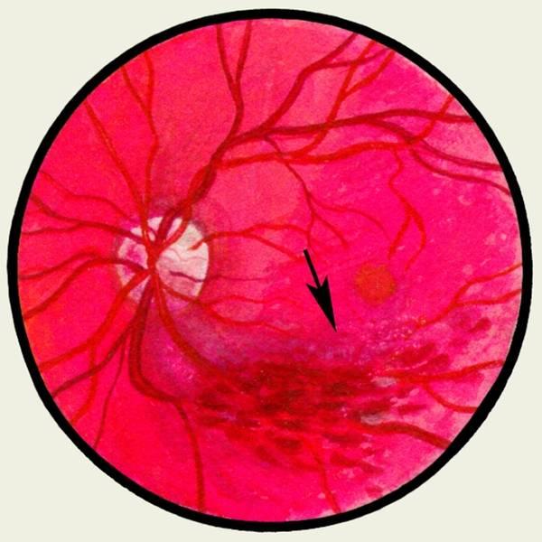 Тромбоз центральной вены сетчатки глаза: лечение