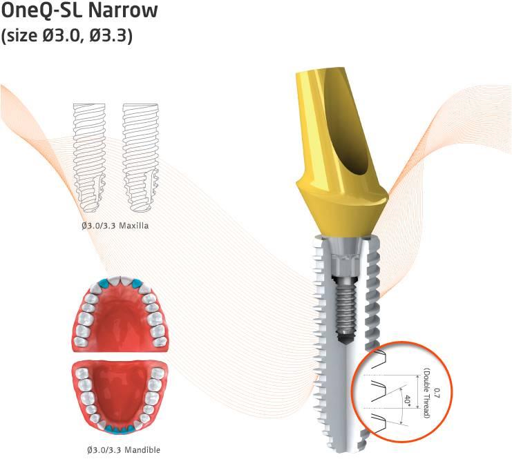 Обзор имплантационных систем 2019. часть 1