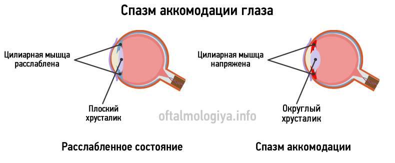 Паралич аккомодации что это лечение причины и симптомы - медицинский справочник