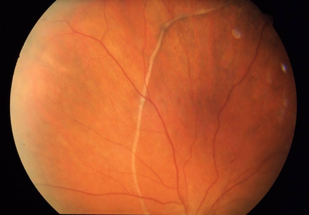 Признаки отслоения сетчатки глаза: симптомы, лечение хирургическим методом — глаза эксперт