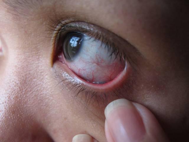 Боль в глазу при движении глазного яблока - причины, лечение