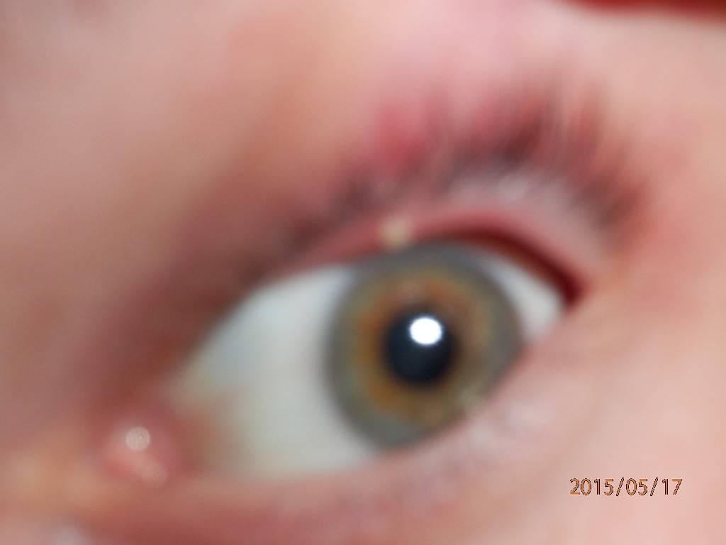 На веке появился белый прыщик: что это такое под ресницами, на глазу, как лечить прозрачные точки и волдыри