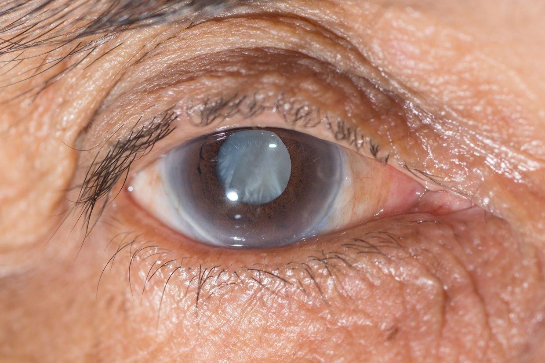 """Помутнение задней капсулы хрусталика глаза: причины и лечение (лазерная дисцизия) - moscoweyes.ru - сайт офтальмологического центра """"мгк-диагностик"""""""
